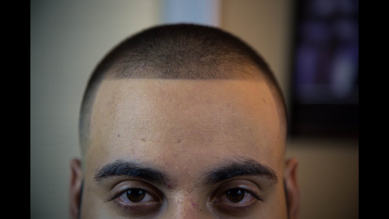 Bald Fade With 2 On Top Youtube