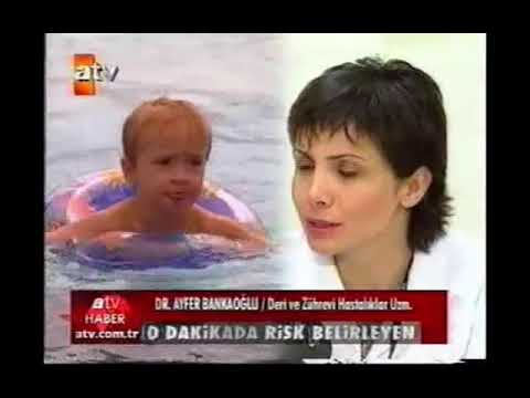 ATV Ana Haber - Havuz Hastalığı
