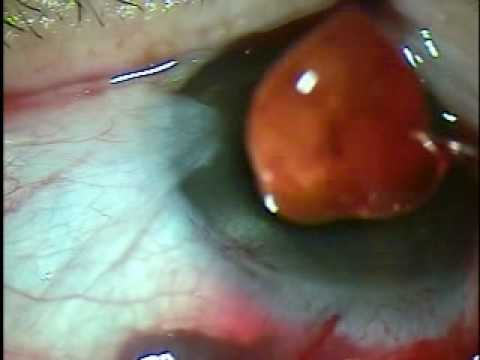 Catarata Small Incision Sutureless Cataract Surgery (SICS) / FINGER BULLET
