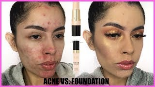 ACNE VS FOUNDATION: MILANI CONCEAL + PERFECT FOUNDATION STICK & CONCEALER | Rocio Ceja