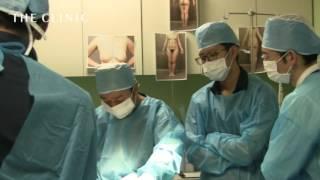 大胸筋内への注入方法と注入によるメリット