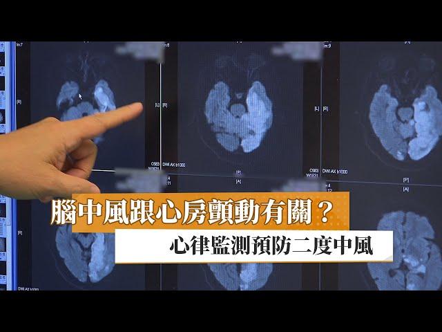 腦中風跟心房顫動有關? 心律監測預防二度中風