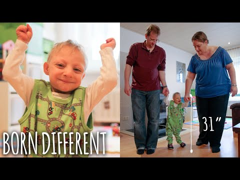 Tiny 31-Inch Boy With Primordial Dwarfism Defies Doctors | BORN DIFFERENT