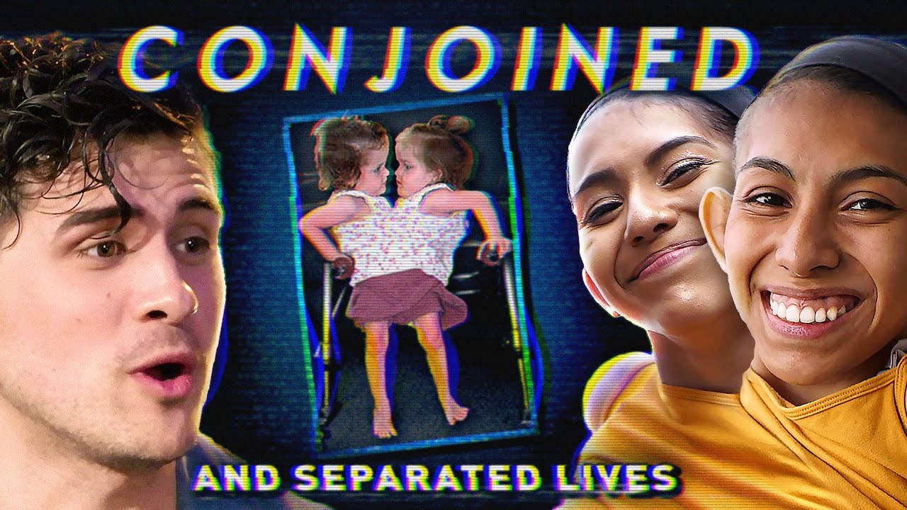I spent a day with CONJOINED TWINS