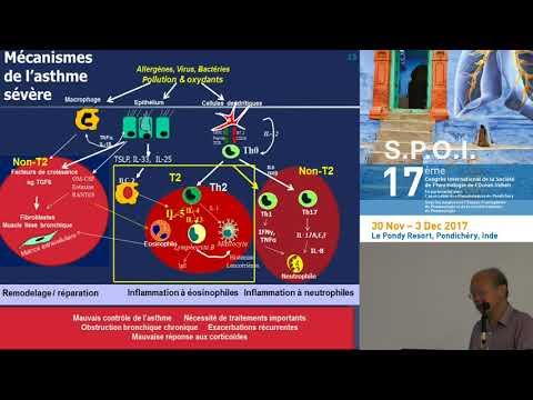 Médecine personnalisée dans l'asthme Où en est on Pr F Chung Londres, RU