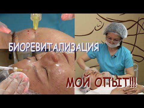 Биоревитализация лица  Подробное видео photo