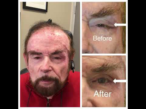 Dr. Taban perform corrective revision left eyelid surgery for floppy droopy eyelid and canthal dystopia after a previous eyelid cancer reconstruction