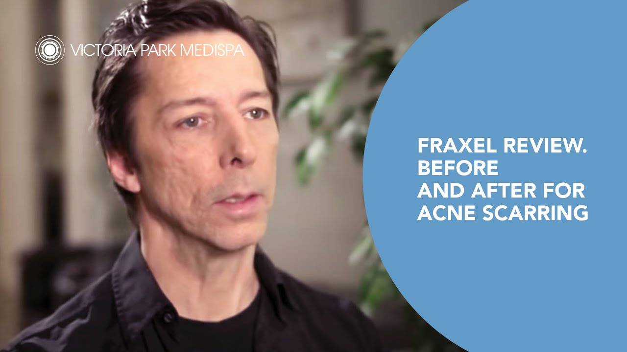 Fraxel Review Before And After For Acne Scarring