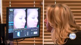 KELOLAND Living: Body Garage Visia Laser Complexion Analysis