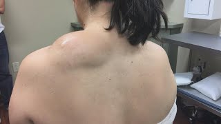 Watch This Life-Changing Lipoma Removal