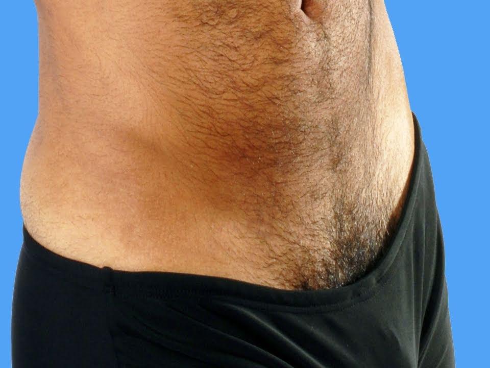 Hairy Genitals 19