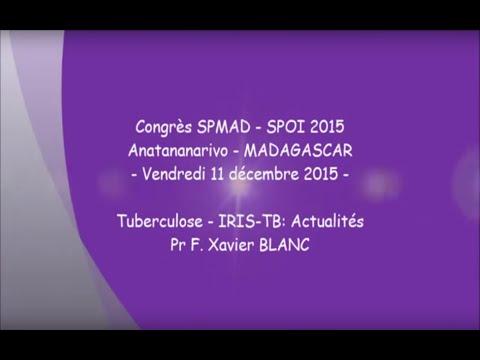 Tuberculose IRIS TB Actualités. Pr F. Xavier BLANC
