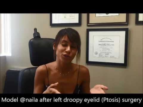 Ptosis Droop Lower Eyelid Corrective Surgery