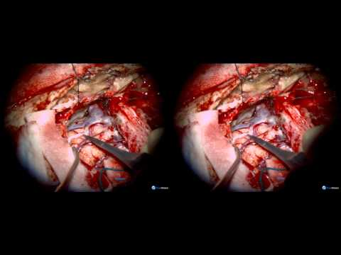 Microsurgical Treatment of an Ethmoidal Dural Fistula: 3-D Illustration