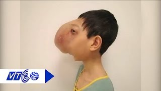 Cắt bỏ thành công khối u khổng lồ trên mặt | VTC
