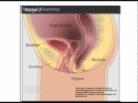 Vaginal Vault Prolapse - YouTube