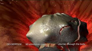 Journey trough the human body in 3D Flight & Motion simulation