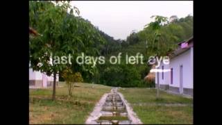 Last Days Of Left Eye Part 1