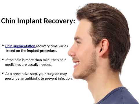 What Is Chin Implant?