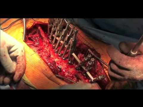 Hernia Spine surgery L5-S1 Musica Movil | MusicaMoviles.com