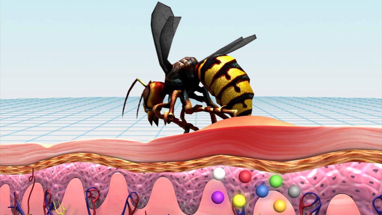 maxresdefault jpgJapanese Giant Hornet Sting Wound