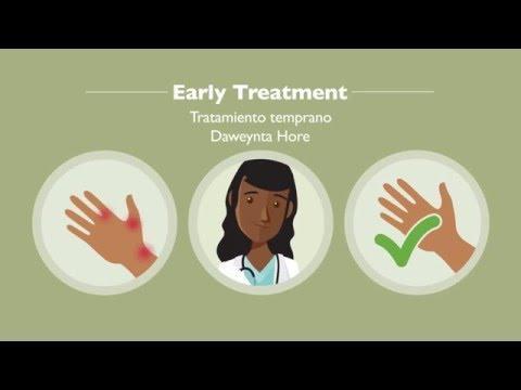 Early Treatment - English, Spanish, Somali