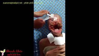 Bệnh lạ ở Tiền Giang - virus ăn thịt người ăn hết khuôn mặt - suanonalphalipid.net 0975.636.974
