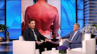 Chris Pratt's Massive Sunburn Put a Damper on His Honeymoon