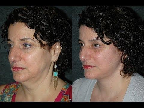 Texas Facial Plastics : Houston TX Best      WritersCafe org