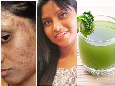 Green Smoothie for Pimple , Acne & Glowing Clear Skin I ONLY 2 INGREDIENTS I Beauty Drink Recipe