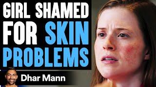 Girl Shamed For Skin Problems ft. Jamie Kern Lima | Dhar Mann