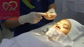 Nâng mũi bằng sụn nhân tạo, lấy sụn nắp tai, ghép sụn đầu mũi