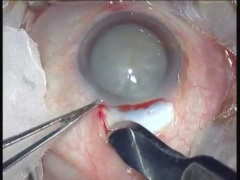 Mature cataract SICS - Dr Prathmesh Mehta.mpg