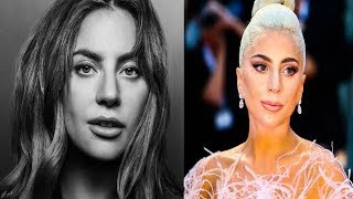 """Lady Gaga Opens Up About Living With Fibromyalgia  - """"Chronic Pain Is No Joke"""""""