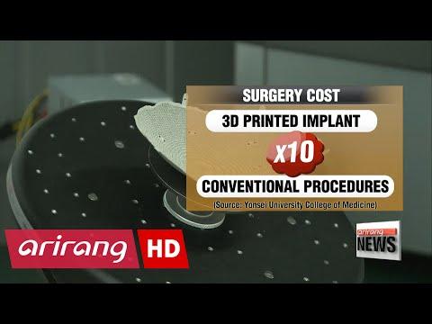 Doctors perform first surgery in Korea using 3D-printed heel bone
