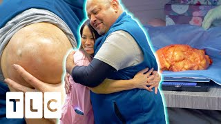 Dr. Lee Removes A Lipoma That Weighs More Than A Newborn Baby! | Dr. Pimple Popper Pop Ups