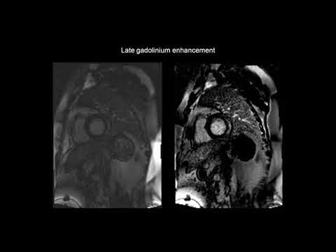 How to assess myocarditis with the help of cardiac MRI (CMR)