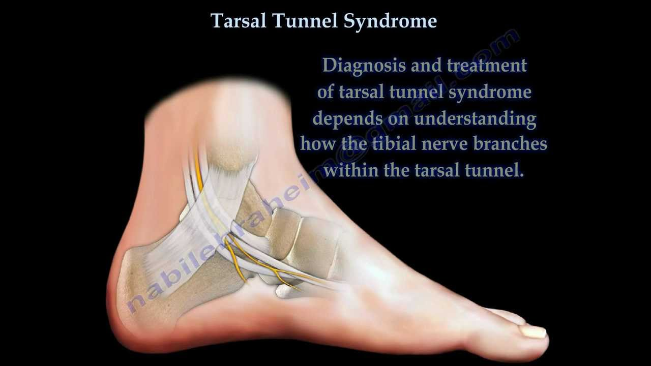 Tarsal Tunnel Syndrome Everything You Need To Know Dr