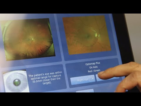 screenshot of youtube video titled Virtual imaging system helps detect potential blindness among diabetic patients