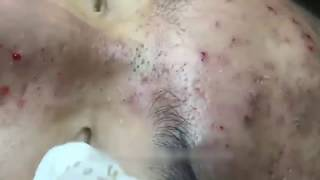 Squeezing the most disgusting blackheads on face in history