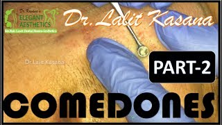 BLACKHEAD EXTRACTION WITH COTTON BUDS PART - 1 - Dr Lalit Kasana