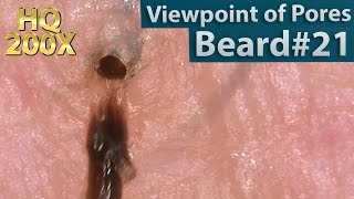 #21 Pull Out Beard(Viewpoint of Pores), Blackhead and Hair Root(Root Sheath) Close up