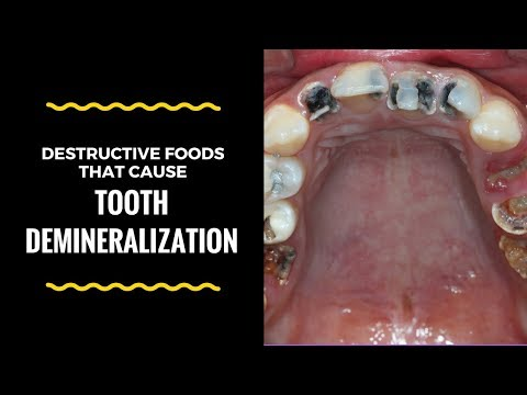 Do Not Eat The Following Foods Or Tooth Demineralization Will Grip You Violently!