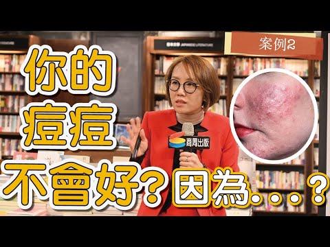 痘疤女王-莊盈彥醫師的『痘痘醫生教你鬥』簽書會實況,我們一起來看看!