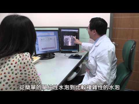 注意腎臟水泡變化,預防多囊腎病變發生-腎臟內科-黃智源-醫師