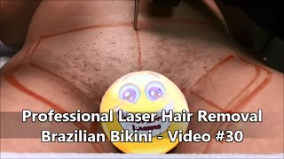 FULL BRAZILIAN LASER HAIR REMOVAL - VEA MAS VIDEOS DE ...