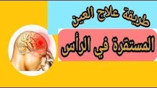 طريقة علاج العين المستقرة في الراس