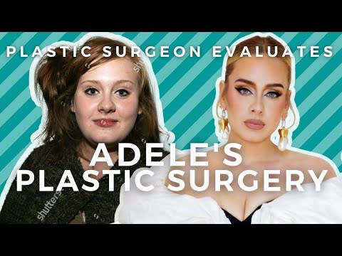 Plastic Surgeon Evaluates Adele at 33: Did Adele Have a Nose Job?