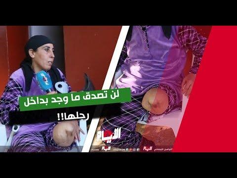 بقايا حرب ليبيا مغربية برجل مقطوعة بسبب صاروخ