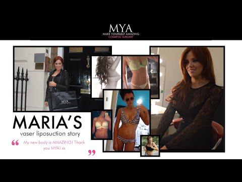 Maria Fowler's Vaser Lipo Story